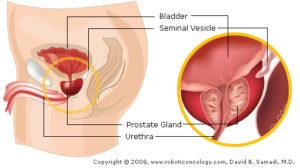 operazione alla prostata in laparoscopia